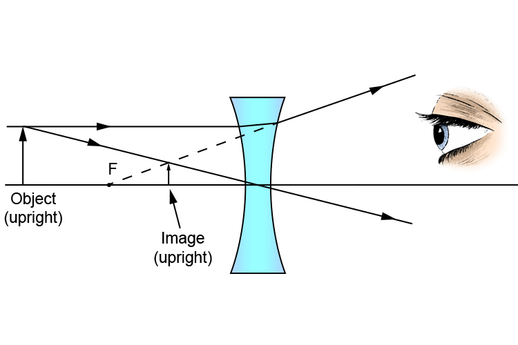 Ray diagram of a concave lens showing a virtual image