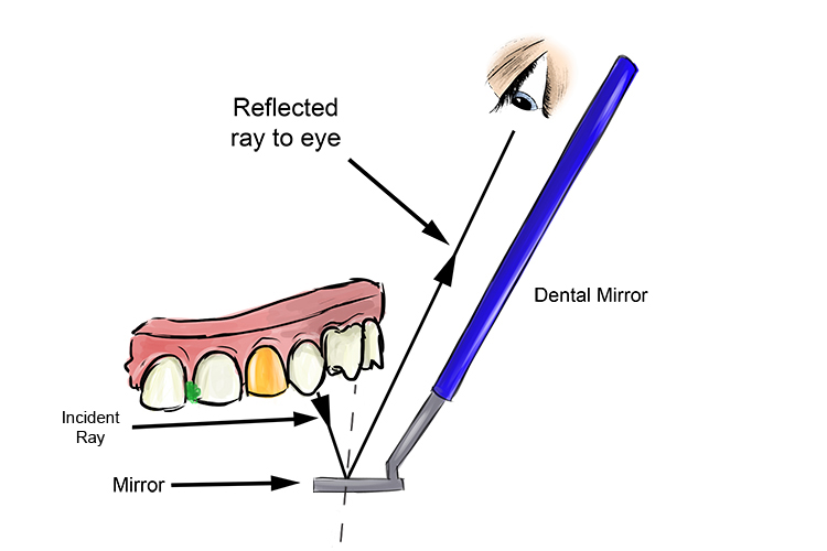 Dental mirror in use