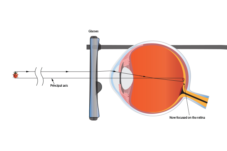 Concave lens of glasses used to focus image on eyes retina