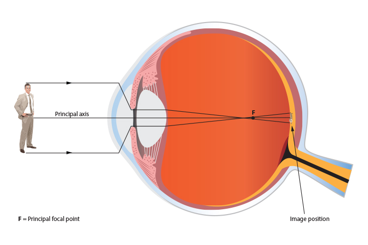 Ray diagram of a human eye