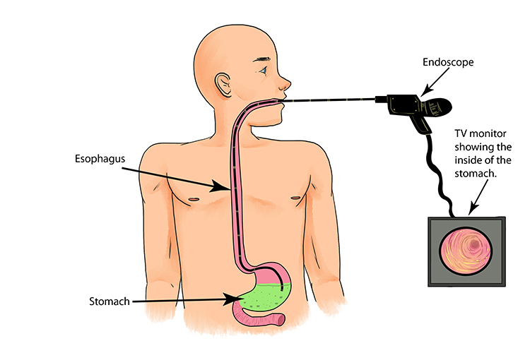 The optical fibre of an endoscope is passed down through the oesophagus to see inside the patients stomach.