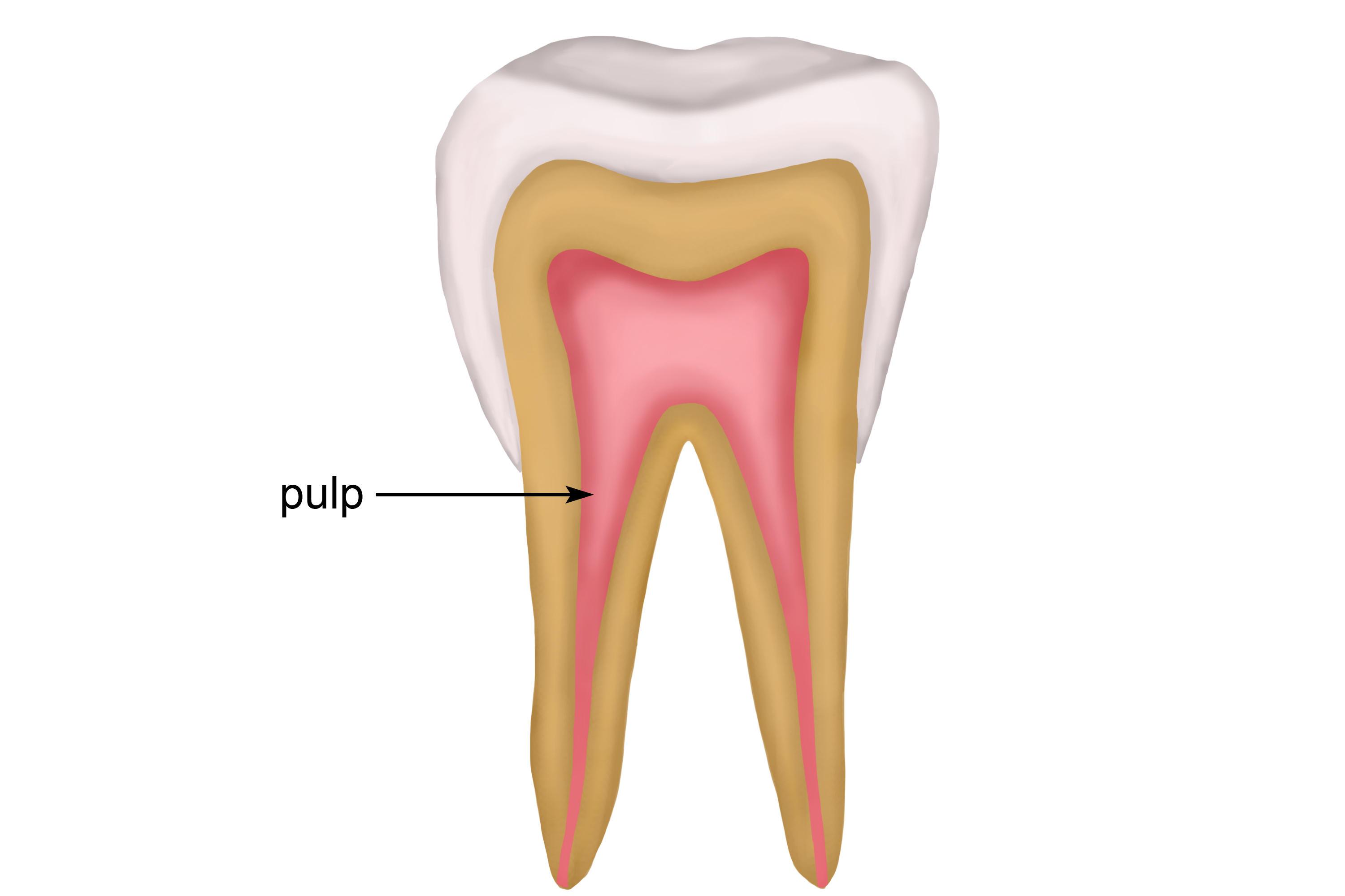 Pulp is a living tissue inside the dentine that is connected to the blood stream and nerves