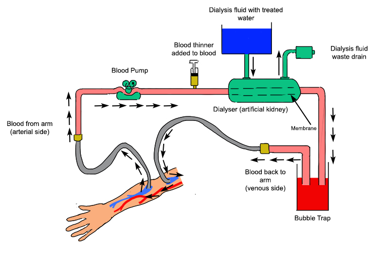Details showing how haemodialysis filters waste from blood diagram showing the blood flow of a haemodialysis system also showing the features the blood will ccuart Images