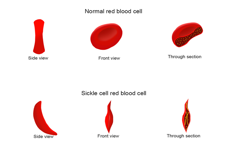 The disease sickle cell is caused by a mutation in the base sequence