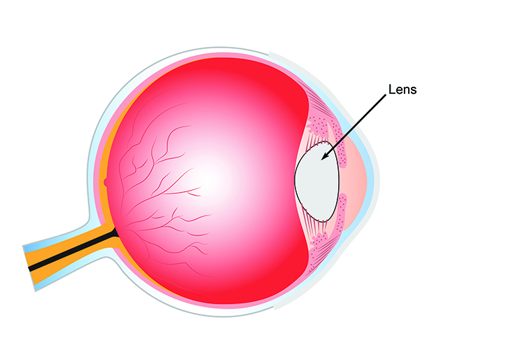 The lens is positioned behind the retina and focuses light from different distances