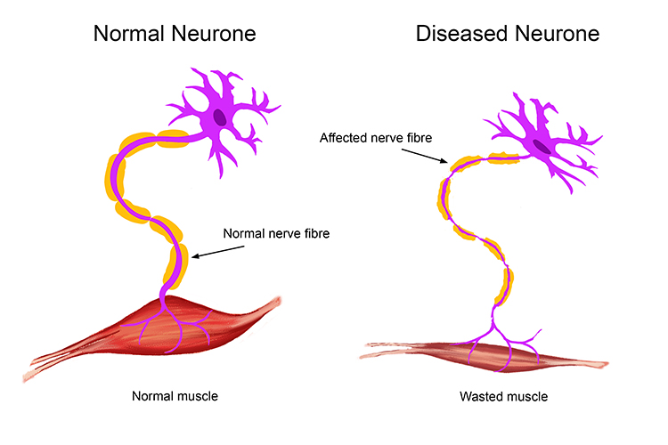 Motor neurone disease is the breakdown of nerve cells for What causes motor neuron disease mnd
